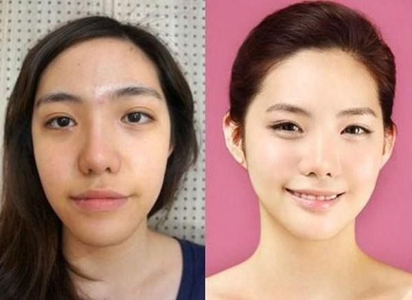 Cirugía-plástica-en-Corea-06-600x436